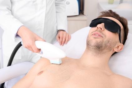 Haarentfernung mit IPL (Intense Pulsed Light) beim Mann